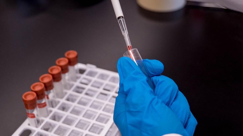 Universidad de Oxford podría tener vacuna contra COVID-19 en septiembre - Al menos 80 proyectos de vacuna contra el COVID-19 están en marcha en todo el mundo, dos de los más avanzados se desarrollan en territorio británico