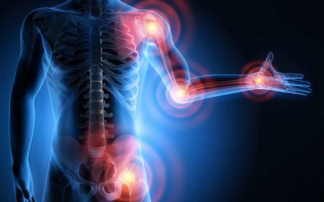 Dolor neuropático afecta al 10 por ciento de latinoaméricanos - Dolor neuropático afecta al 10 por ciento de latinoaméricanos