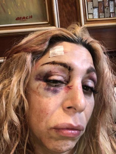 Heridas de Jennifer Agostini. Foto de New York Post