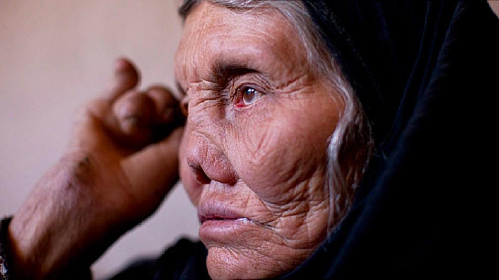 """Resultado de imagen de lepras en mexico"""""""