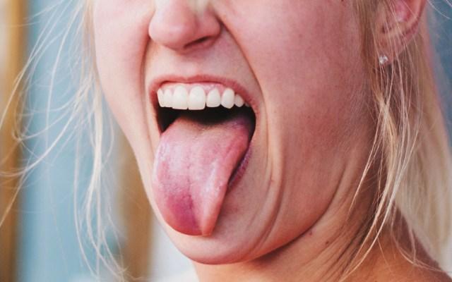 Nueva técnica muestra cómo se organizan bacterias en la lengua - Una nueva técnica de imágenes fluorescentes permite elaborar mapas de alta resolución de las comunidades microbianas en la lengua humana