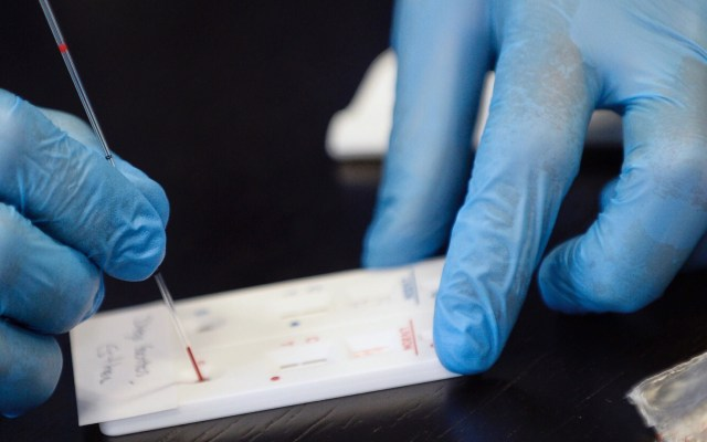 Compañía destinará 500 millones de dosis a EE.UU. si logra vacuna contra COVID-19 - vacuna