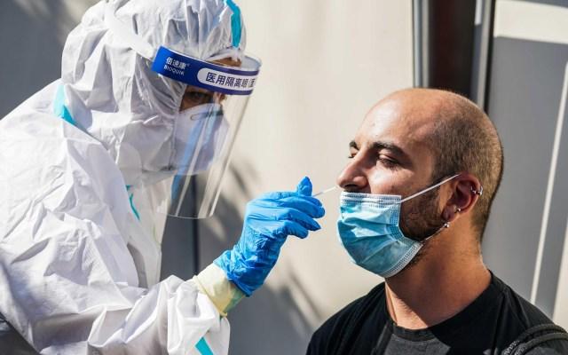 El mundo rebasa los 35 millones de contagios de COVID-19: Johns Hopkins - Aplicación de prueba PCR para detectar COVID-19. Foto de EFE