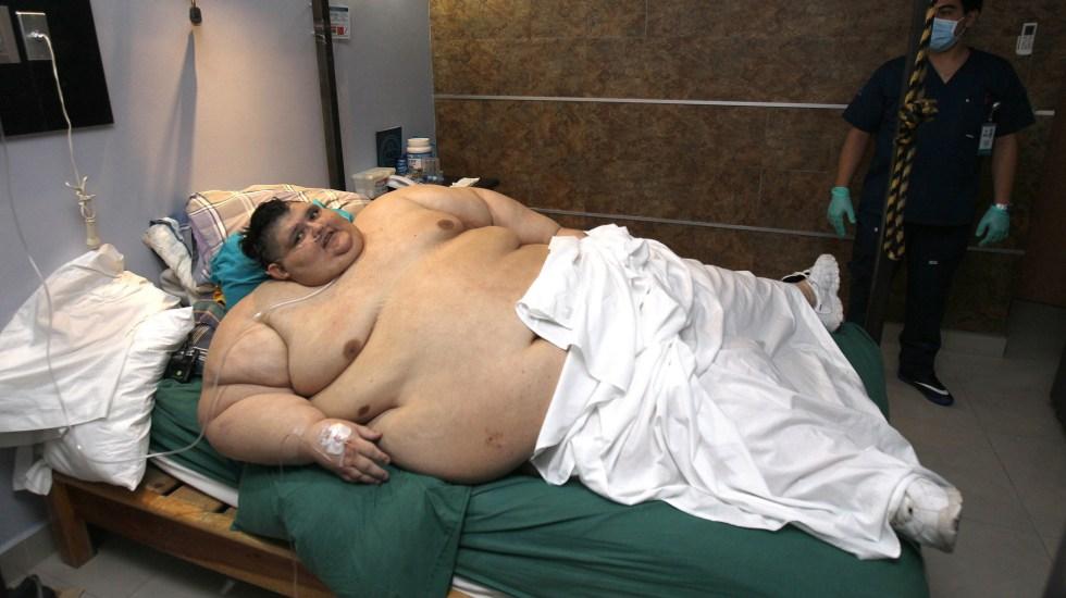 El mexicano más gordo del mundo supera el COVID-19 - Juan Pedro Franco en 2017, cuando obtuvo el Guinness como la persona más gorda del mundo. Foto de EFE