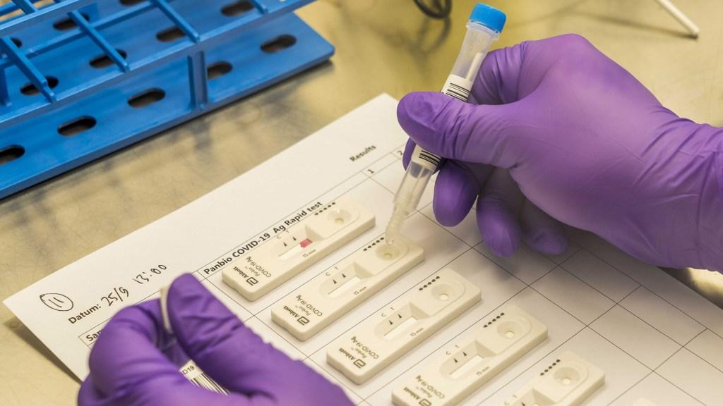 OMS distribuirá 120 millones de pruebas rápidas de COVID-19 a países en desarrollo - Tests rápidos de COVID-19. foto de EFE