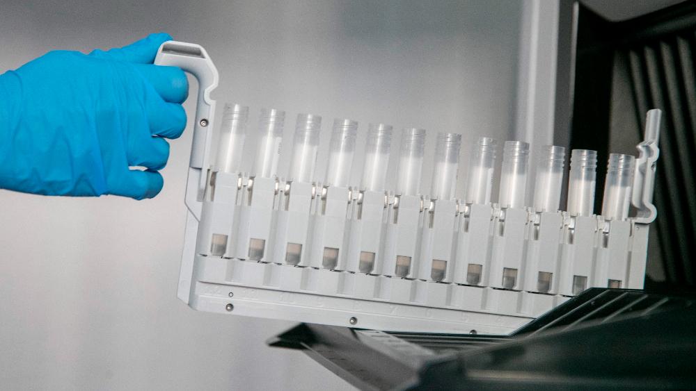 Mutaciones de COVID-19 halladas en Jalisco podrían ser locales: UdeG - Probetas para los test PCR en un laboratorio de análisis. Foto de EFE