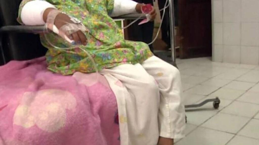 Mujer quema brazos a su hija de 6 años por robar dulces - Quemaduras en antebrazos a niña en Bolivia. Foto de Notivisión