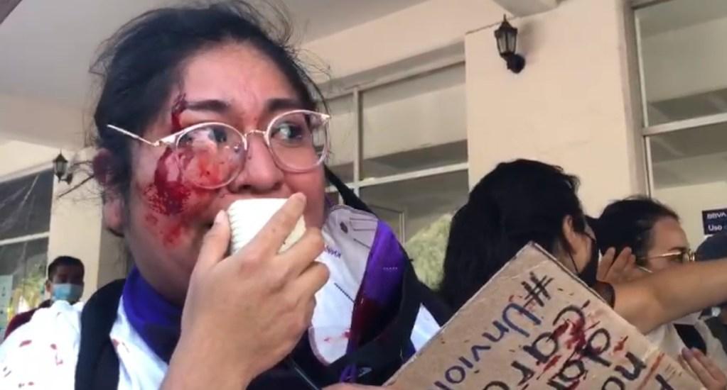 Presuntos simpatizantes de Salgado Macedonio agreden en Iguala a vocera de colectiva feminista - Yolitzin Jaimes Iguala Guerrero