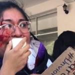 Presuntos simpatizantes de Salgado Macedonio agreden en Iguala a vocera de colectiva feminista