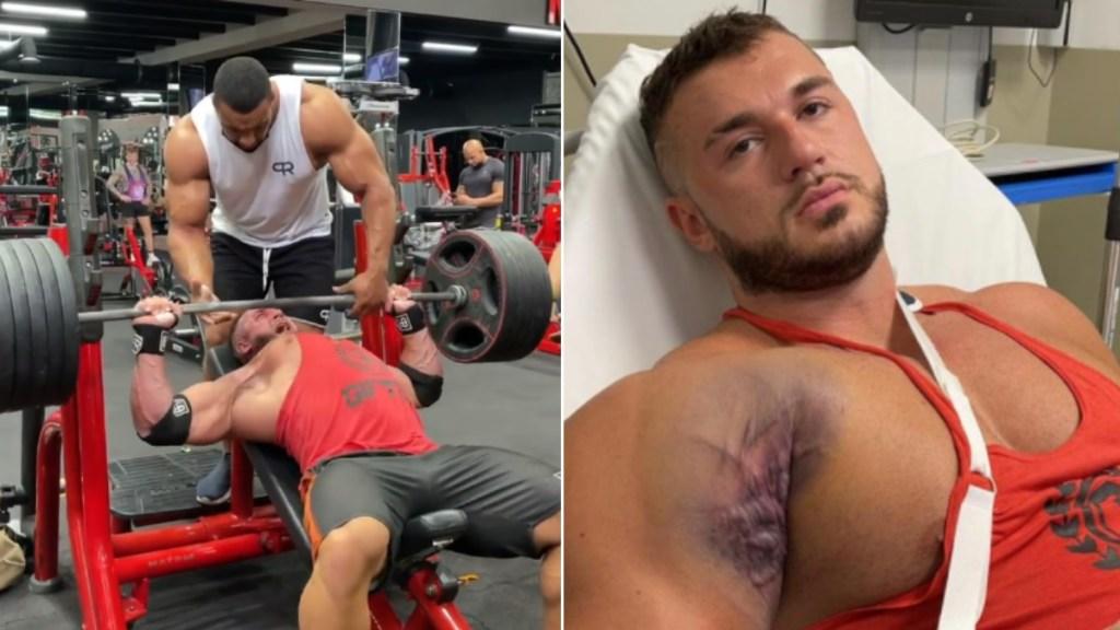 #Video Fisicoculturista sufre aparatosa lesión durante entrenamiento; se le desprende tendón del hueso - FisicoCulturista lesión