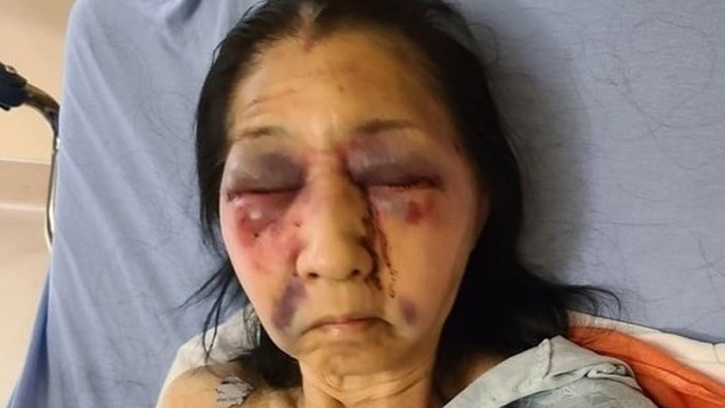 Golpean en Los Ángeles a adulta mayor mexicana; la confundieron con asiática - Becky, mexicoamericana agredida a golpes en Los Ángeles. Foto de @the_asian_dawn