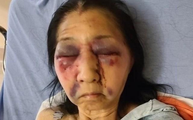 Golpean en Los Ángeles a adulta mayor mexicana; la confundieron con asiática - Becky, mexicoamericana agredida a golpes en Los Ángeles. Foto de @the_asian_dawn