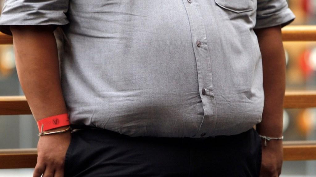 Obesidad y sedentarismo, factores de riesgo para el cáncer de próstata - Obesidad. Foto de EFE