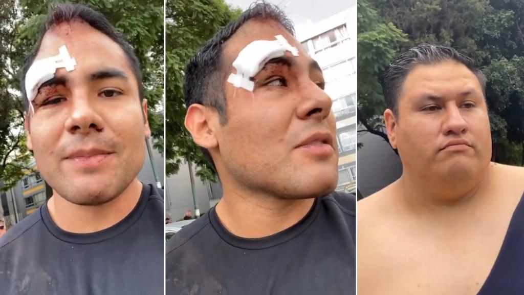 Denuncia 'Pepe Pepe' agresión por parte de sus vecinos - Pepe pepe golpes vecinos enamorándonos