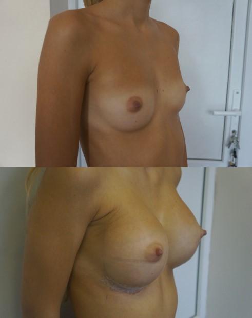 Увеличение груди (маммопластика) в Краснодаре