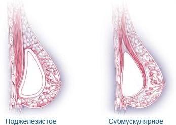 маммопластика Краснодар