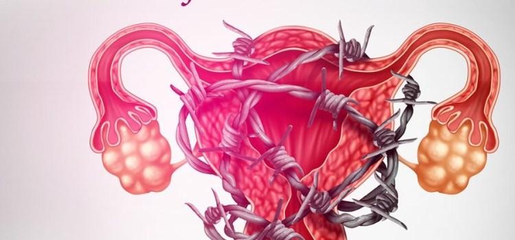 Endometriose, Saiba Identificar