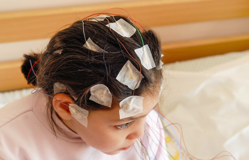 Absence seizures in children are diagnosed via several methods, including an EEG.
