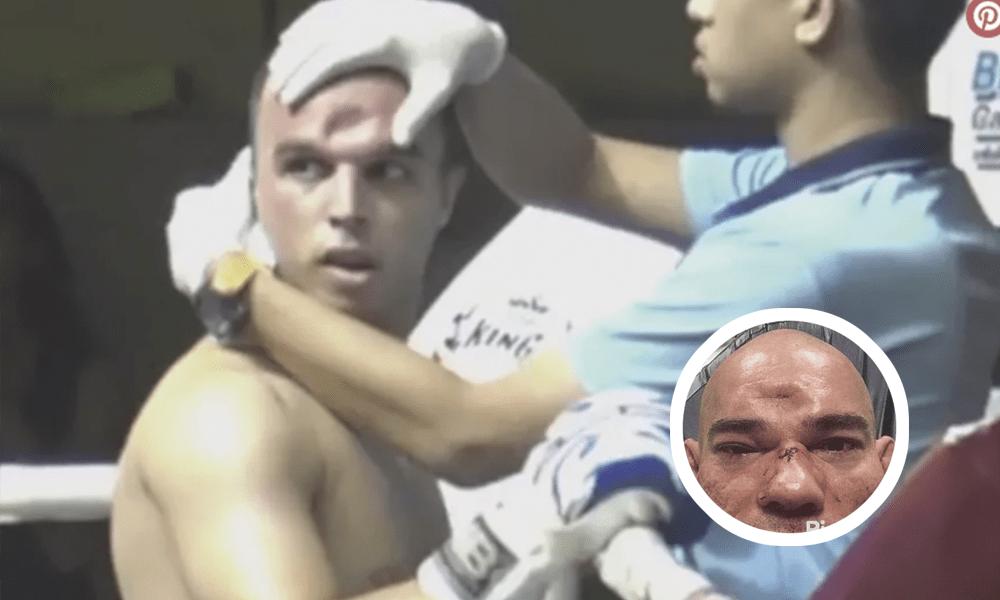 Codazo video fractura muay thai Jeremy Balasse frente