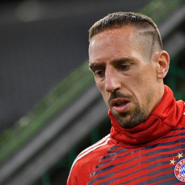 Franck Ribéry Cicatriz de Ribéry Bayern Munich Francia Ribéry Por qué Ribéry tiene así la cara qué le pasó a Ribéry