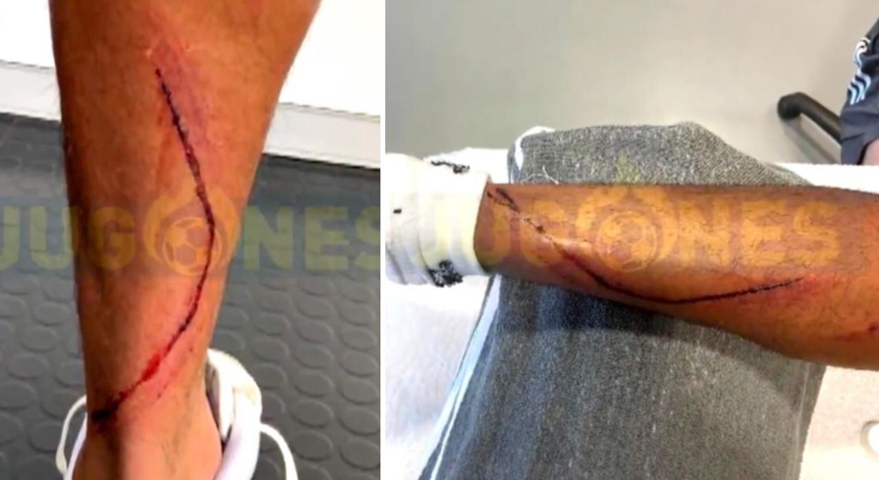 Marvin Real Madrid pierna lesión Machín