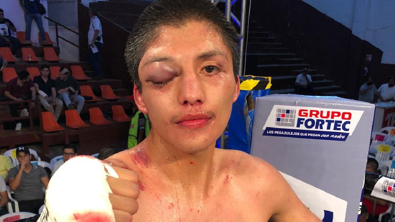 Óscar Nery Plata tras su combate contra Luis Alberto Araujo box boxeo