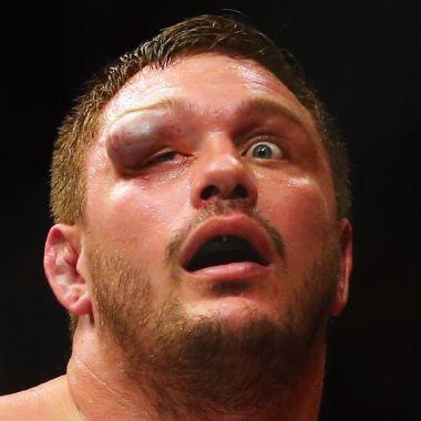 Matt Mitrione lesión UFC 2016