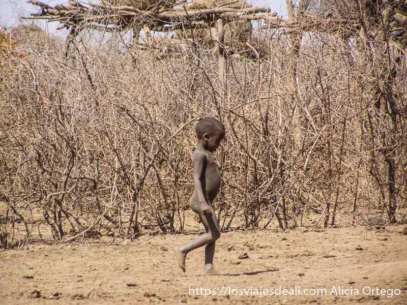 niño de la tribu dasanech desnutrido
