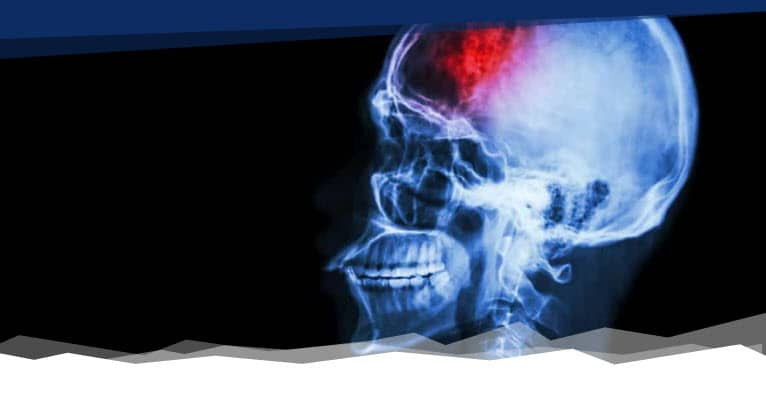 skull fracture lawyer