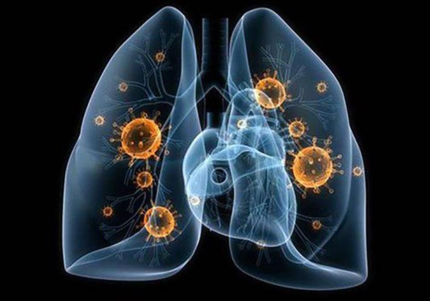 Maailma Terviseorganisatsiooni karm prognoos: koroonaviirusesse nakatub 5,2 miljardit inimest ja sureb kümneid miljoneid