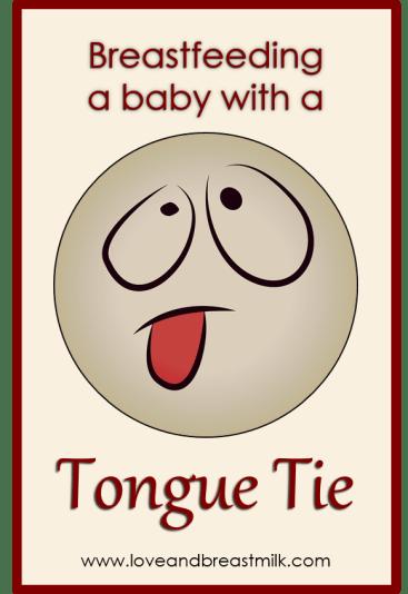 Tongue tie title