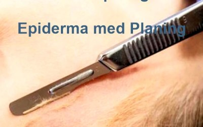 Dermaplaning – Epiderma med. Planing – Czy tylko bankietówka ?
