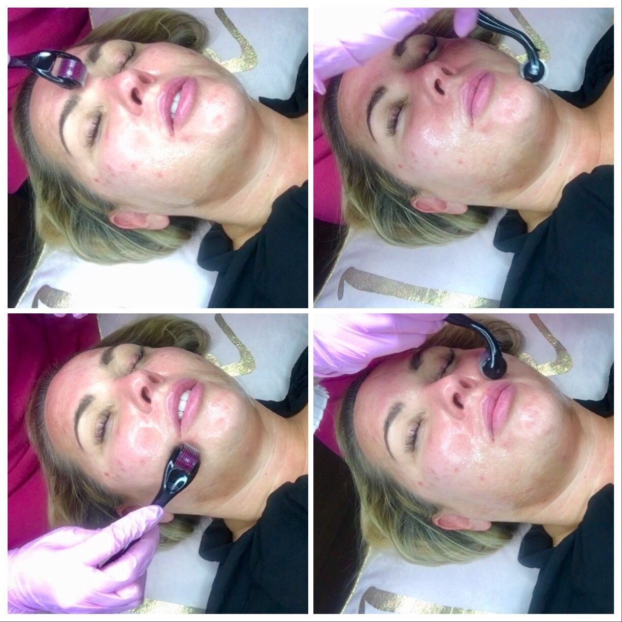 Derma Planning and Derma Roller my review on the diamond facial from house of glam