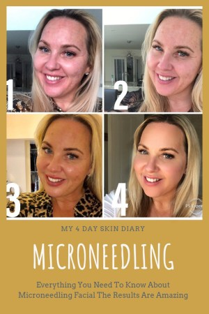 MY 4 DAY SKIN DARY - MICRONEEDLING FACIAL Microneedling Facial - My Review in Essex