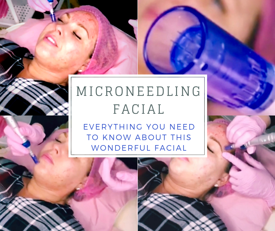 Microneedling Facial - My Review in Essex