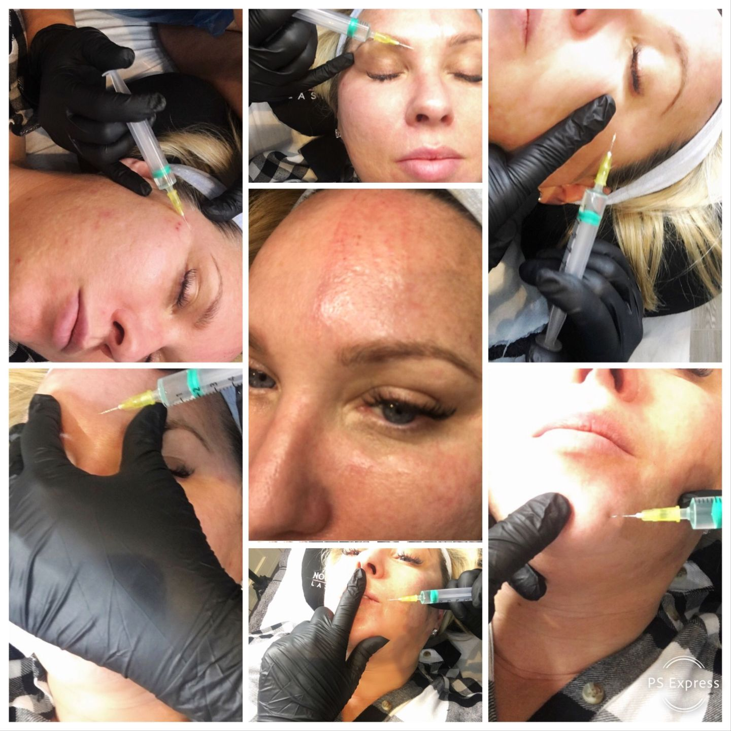Mesotherapy Treatment in Essex