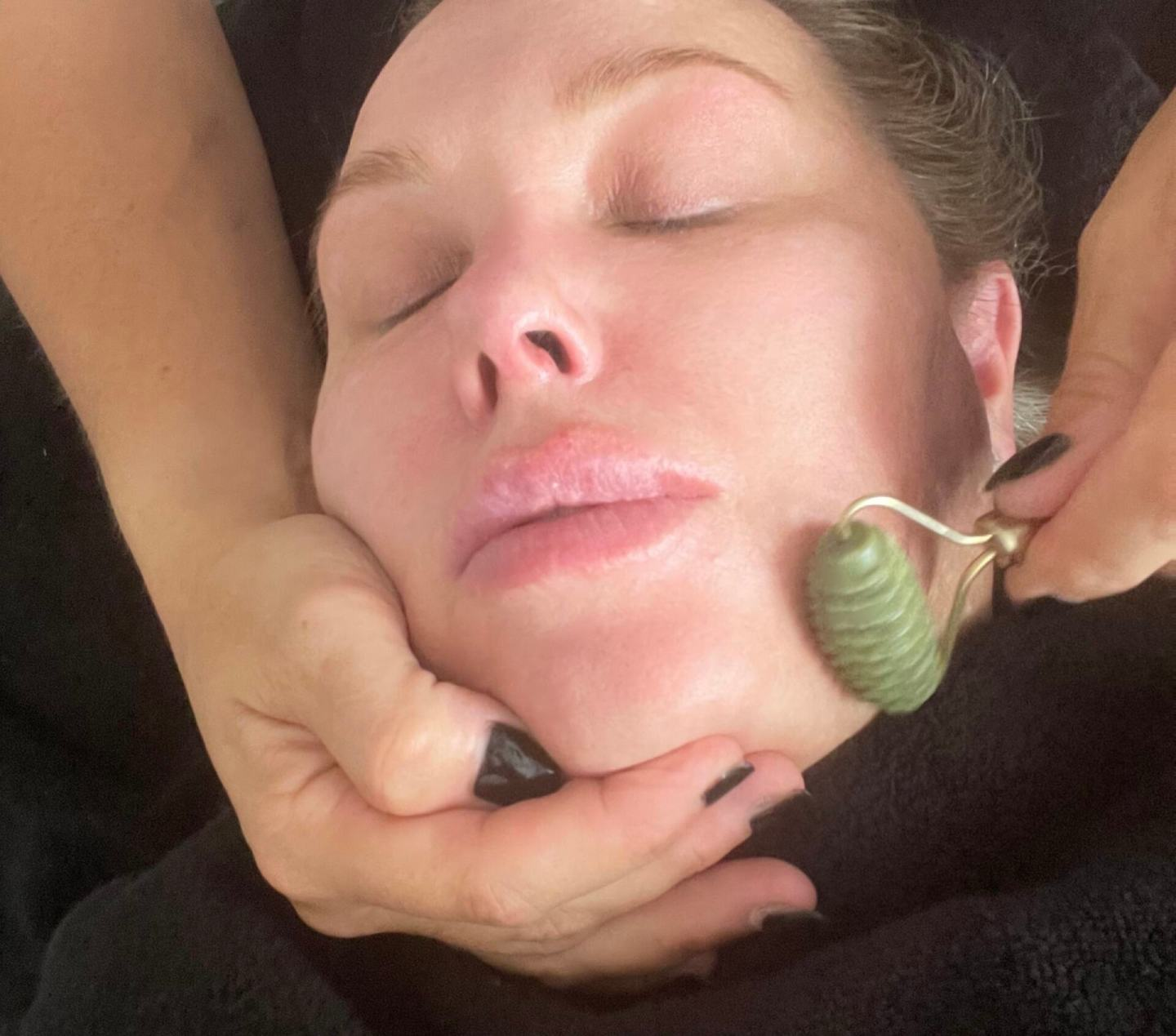 Acupuncture Treatment in Billericay Review - jade roller