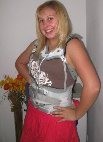 The back brace - helping me in more ways then I would ever have imagined