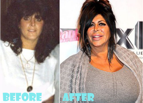 Big Ang Plastic Surgery Breast Implant