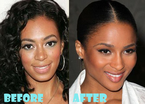 Ciara Plastic Surgery Nose Job