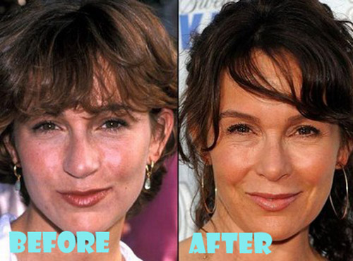 Jennifer Grey Plastic Surgery Nose Job