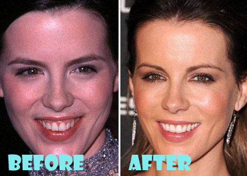Kate Beckinsale Plastic Surgery