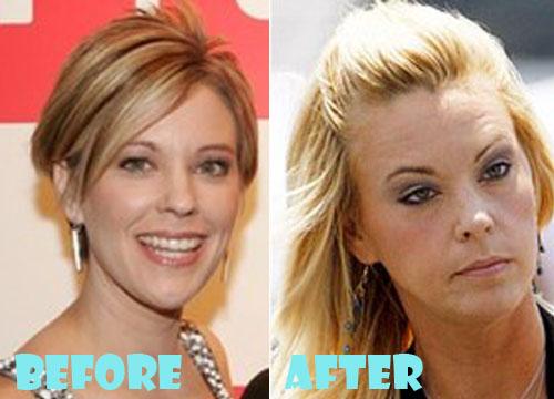 Kate Gosselin Plastic Surgery Facelift