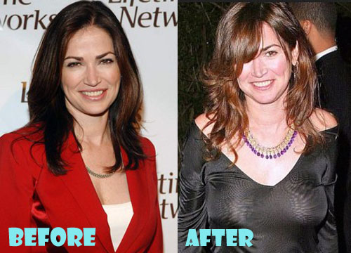 Kim Delaney Plastic Surgery Boob Job