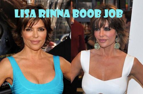 Lisa Rinna Plastic Surgery Boob Job