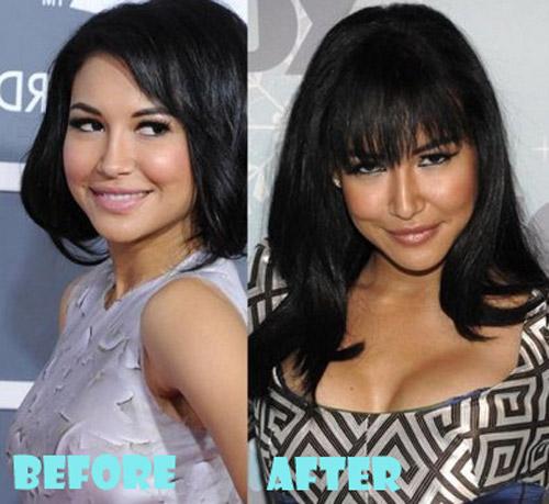 Naya Rivera Plastic Surgery Breast Implant
