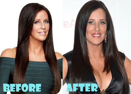 Patti Stanger Plastic Surgery Breast Reduction