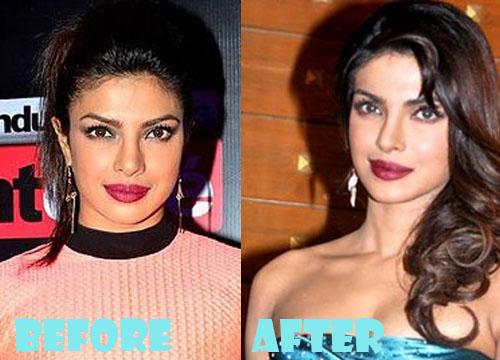 Priyanka Chopra Plastic Surgery Nose Job