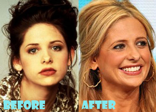 Sarah Michelle Gellar Plastic Surgery Nose Job