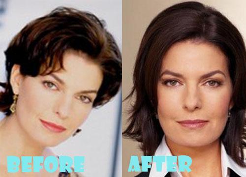 Sela Ward Plastic Surgery Botox